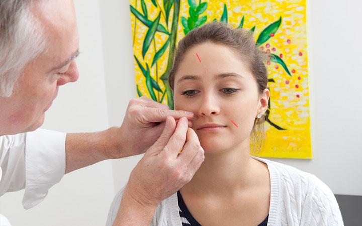 Akupunktur München Ihre Praxis Für Akupunktur Und Tcm München