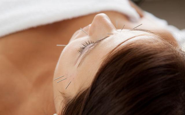 In unserer Praxis bieten wir Akupunktur an. - Praxis für Akupunktur und TMC München.